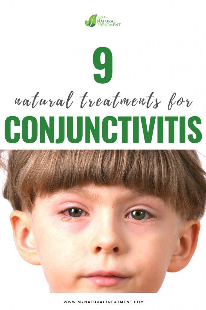 Conjunctivitis Remedies, Acute Conjunctivitis and Purulent Conjunctivitis Treatments