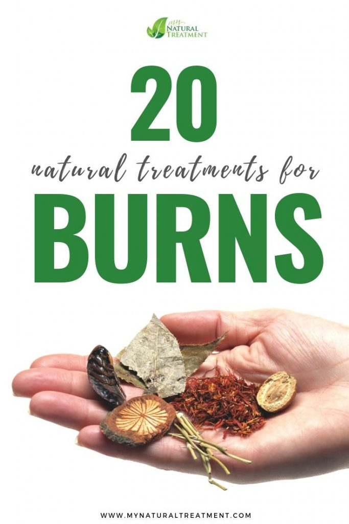 Natural treatment for burns and home remedies