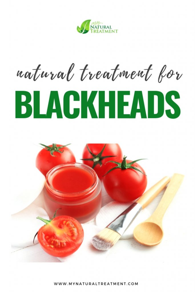 Blackheads Remedy