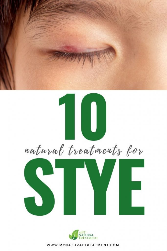 Stye Natural Treatment
