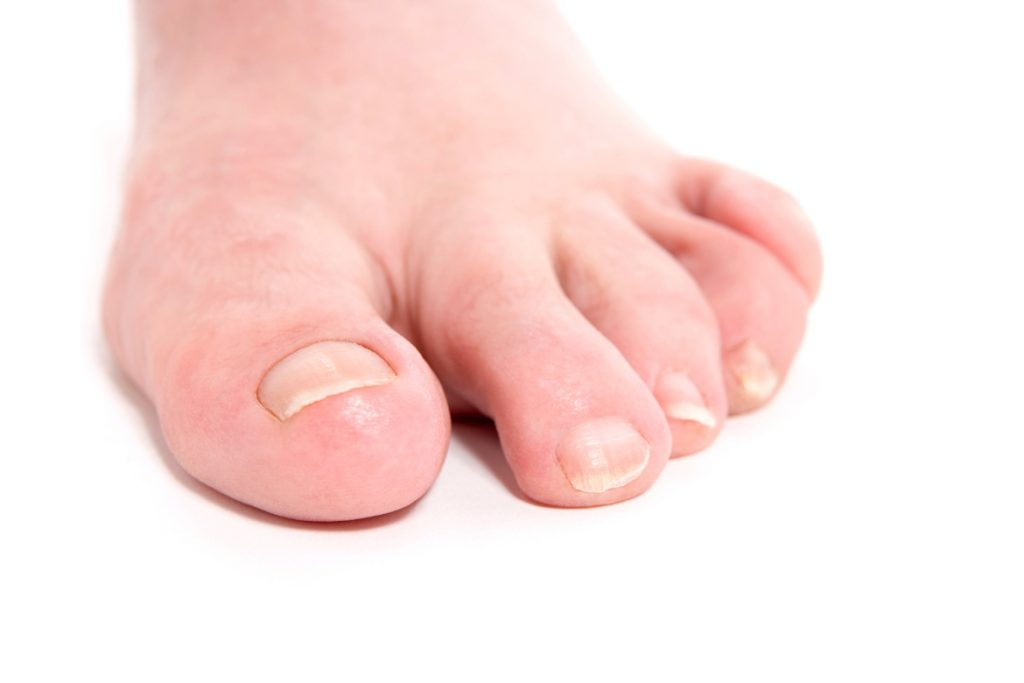 Natural Treatments for Nail Infections