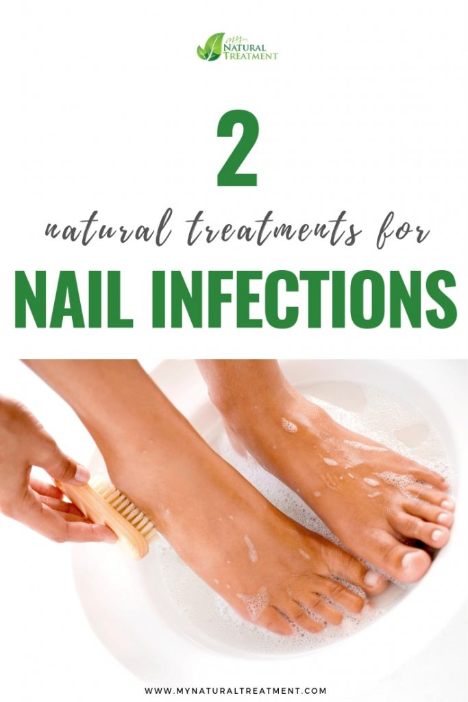 Nail Infection Remedies