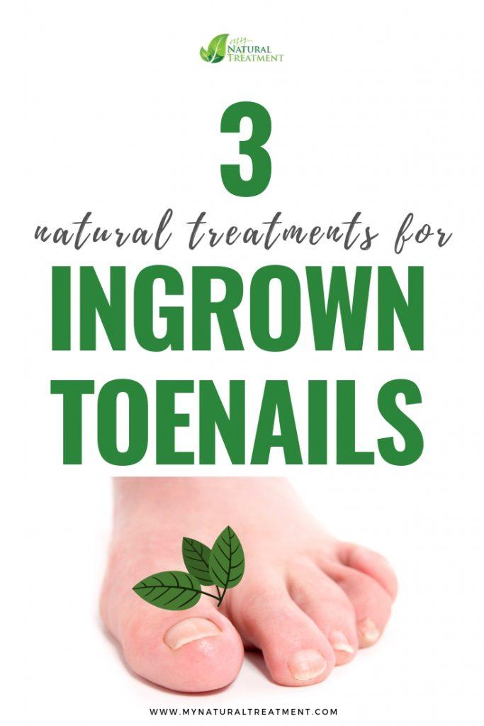 Ingrown Toenails Remedies