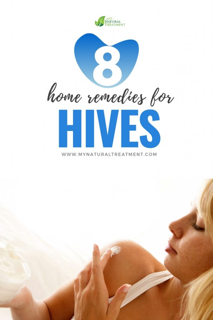 8 Natural Remedies for Hives - MyNaturalTreatment.com
