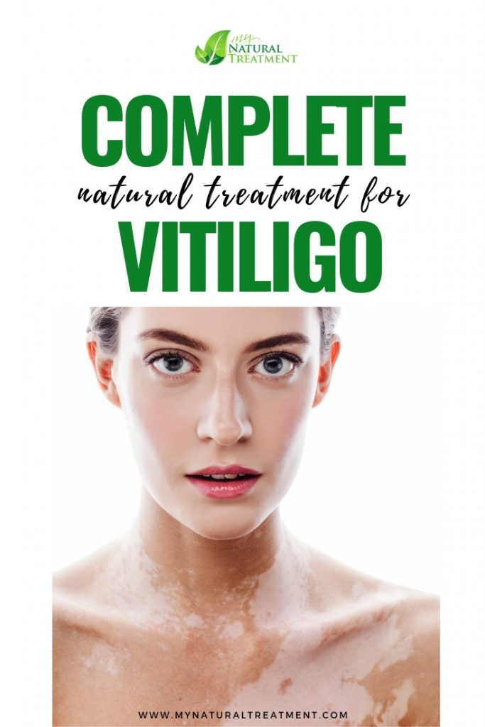 Complete Natural Treatment for Vitiligo