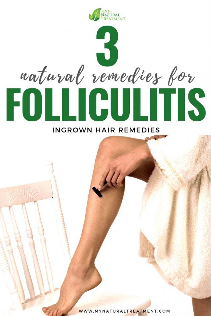 3 Natural Remedies for Folliculitis - Ingrown Hair Remedies