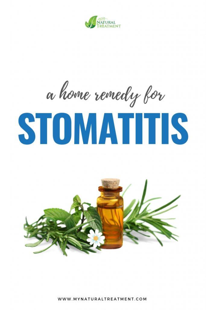 Stomatitis Home Remedy