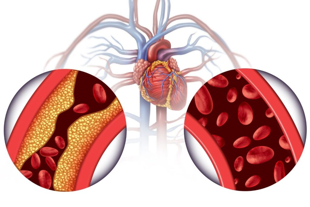 Natural Remedy for High Cholesterol - Cholesterol