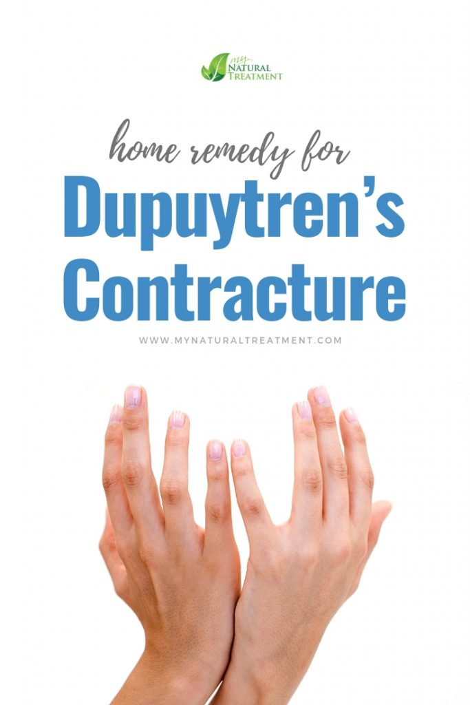 Dupuytren's Contracture Home Remedy - MyNaturalTreatment.com #dupuytrens