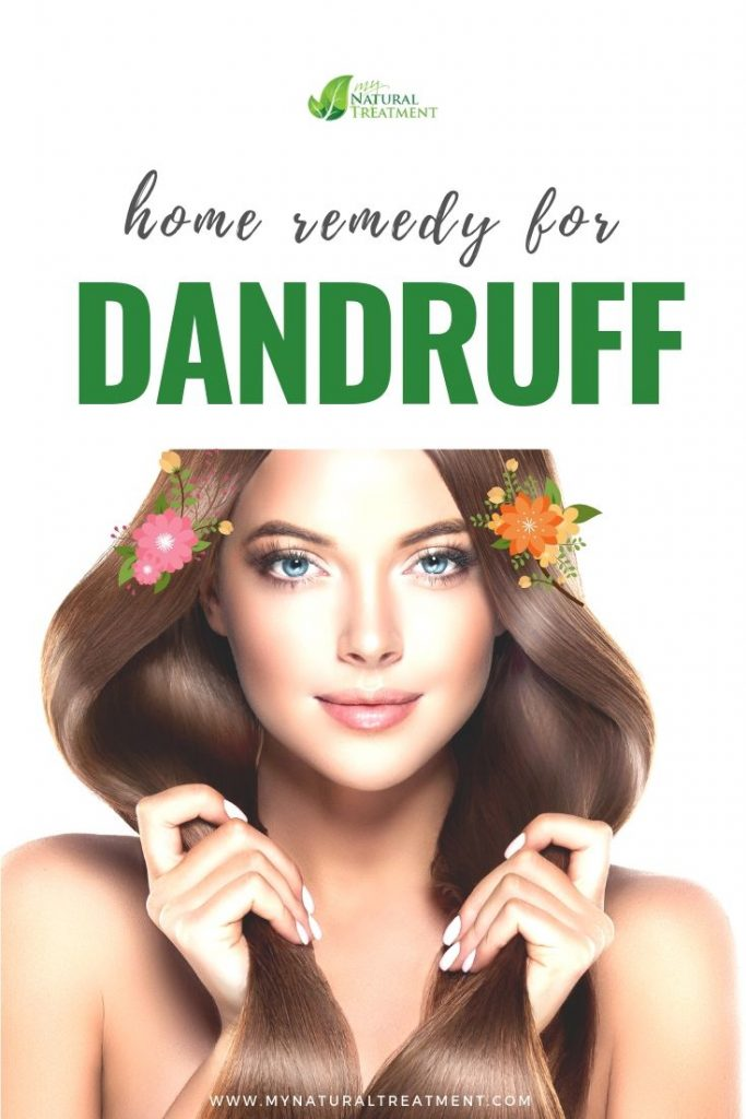 Home Remedy for Dandruff with Honey