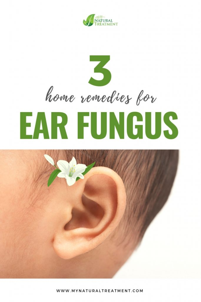 3 Home remedies for ear fungus- MyNaturalTreatment.com