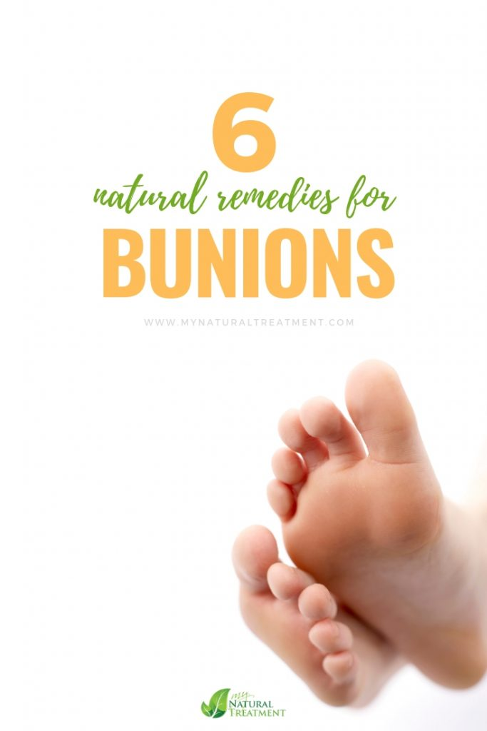 4 Natural Remedies for Bunions MyNaturalTReatment.com #bunions