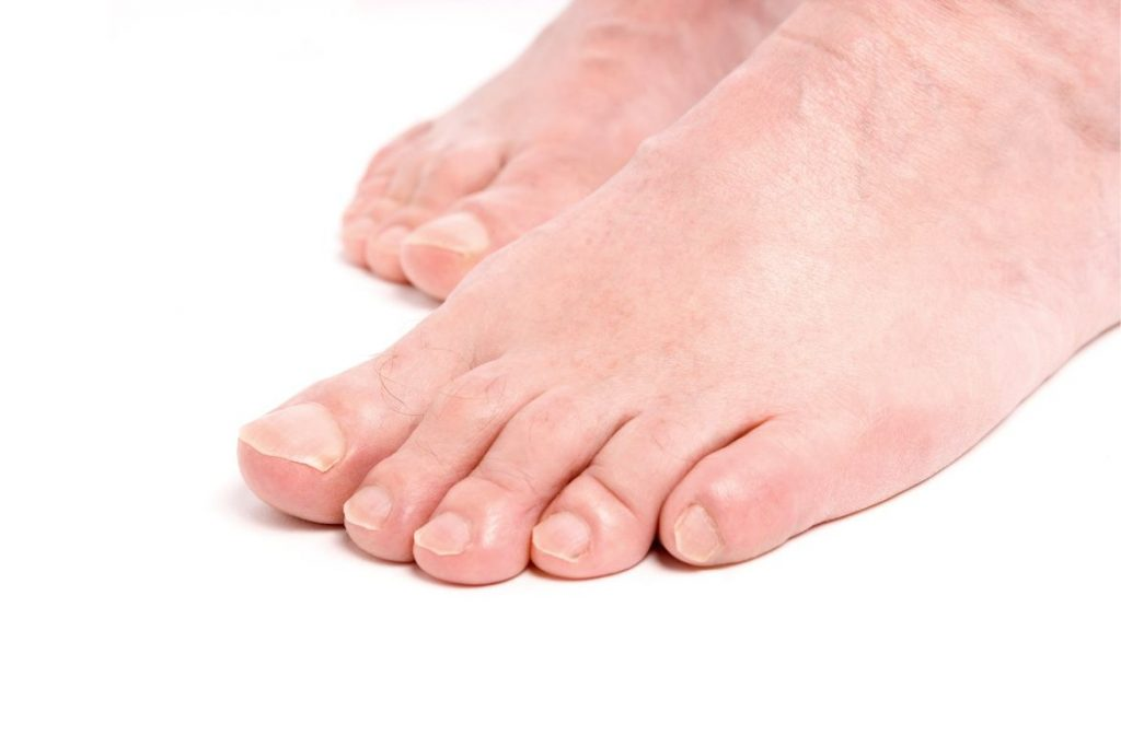 Natural Remedies for Warts on Feet