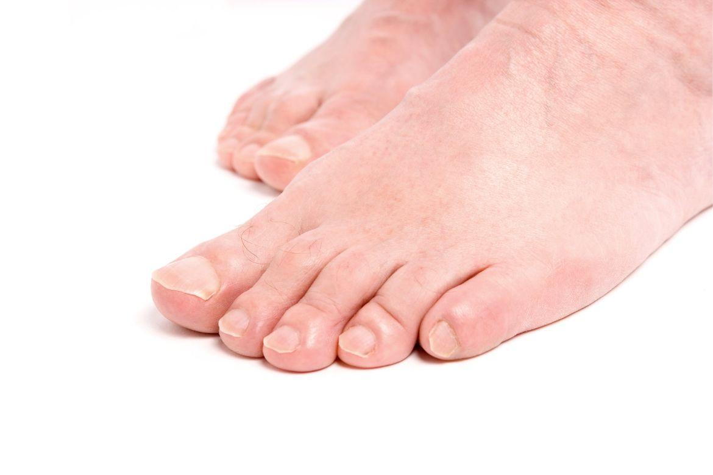Feet Warts Remedies