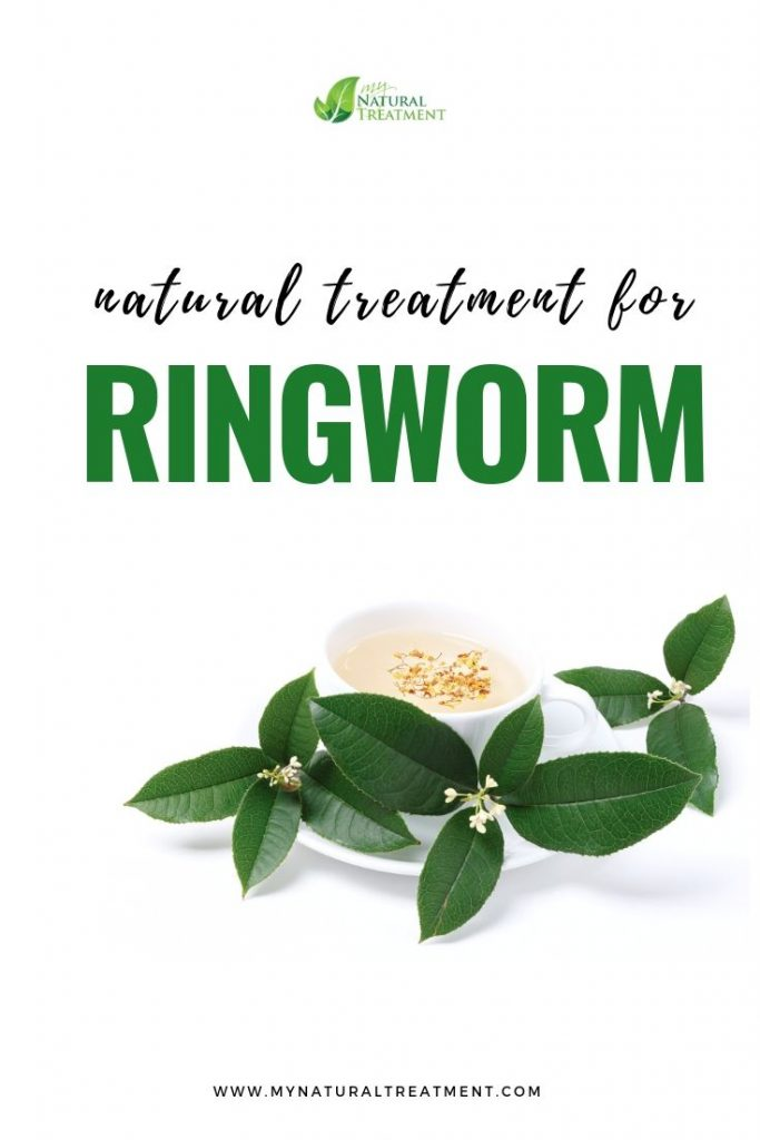 Ringworm Home Remedy