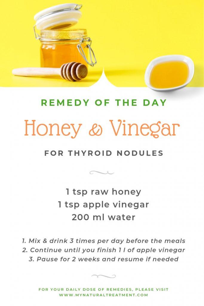 Honey & Vinegar for Thyroid Nodules - Home Remedy