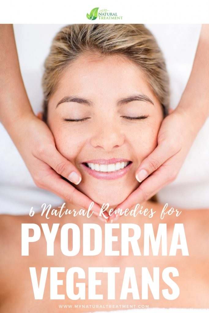 6 Natural Remedies for Pyoderma Vegetans - MyNaturalTreatment.com