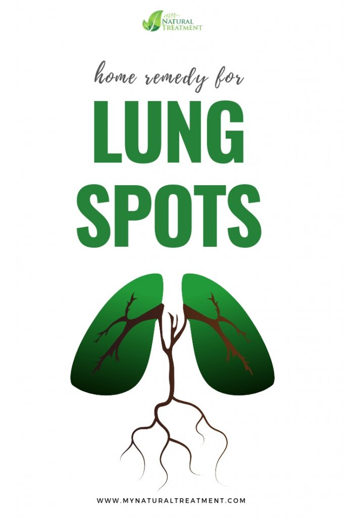 Home Remedy for Lung Spots