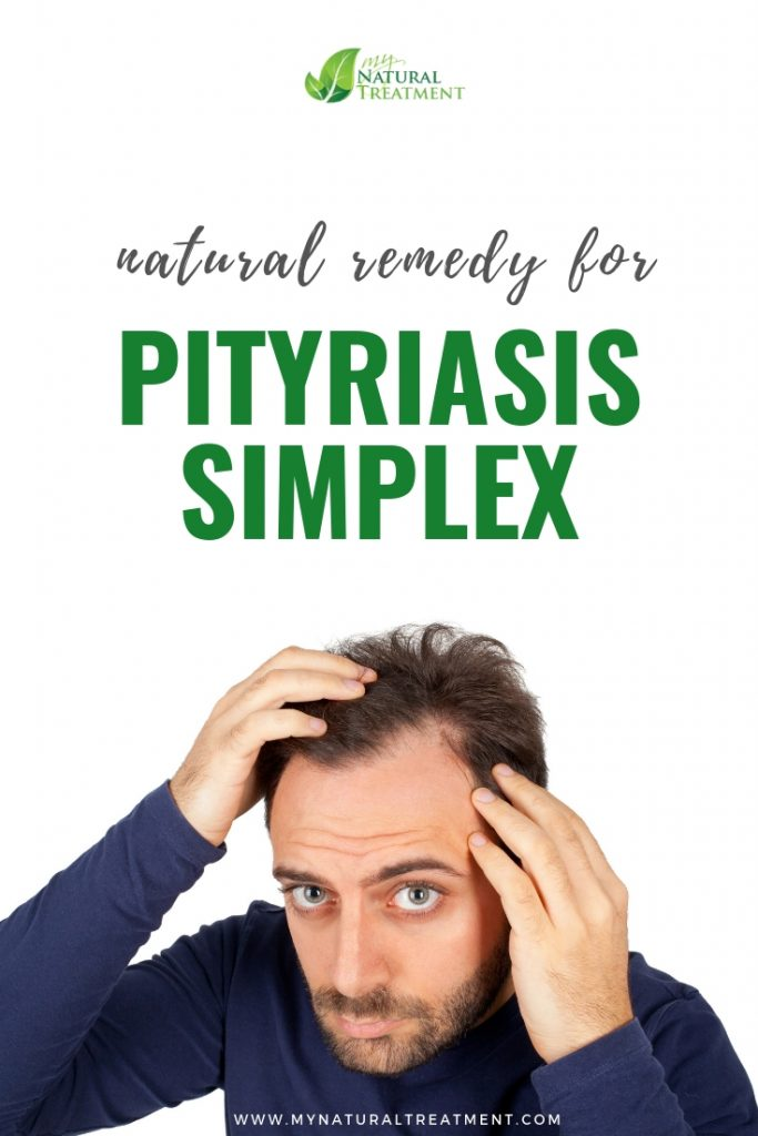 Natural Remedy for Pityriasis Simplex