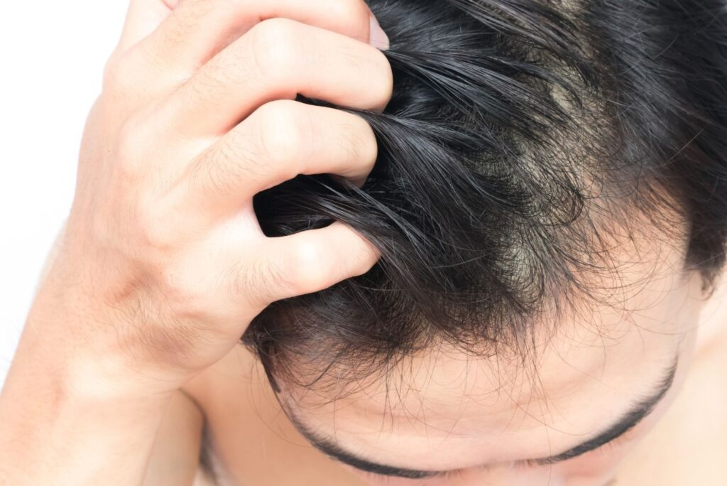 3 Natural Remedies for Scalp Ringworm - Scalp Man