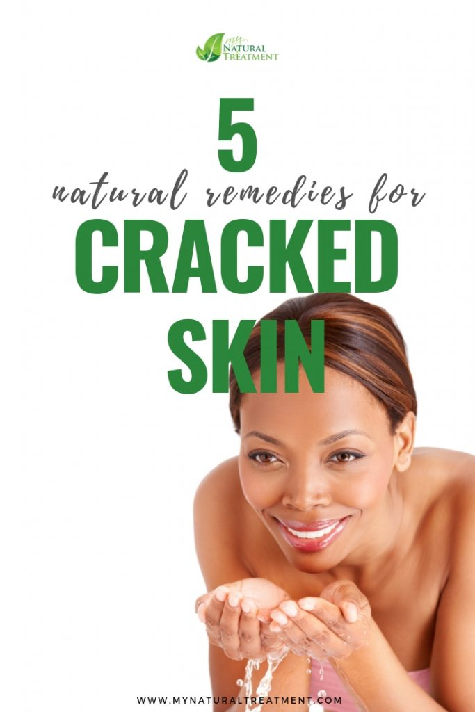 5 Natural Remedies for Cracked Skin - MyNaturalTreatment.com