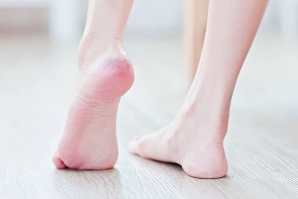 15 Natural Remedies for Cracked Heels - Heel Crack