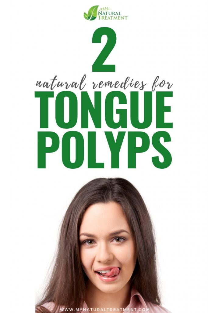 2 Natural Remedies for Tongue Polyps