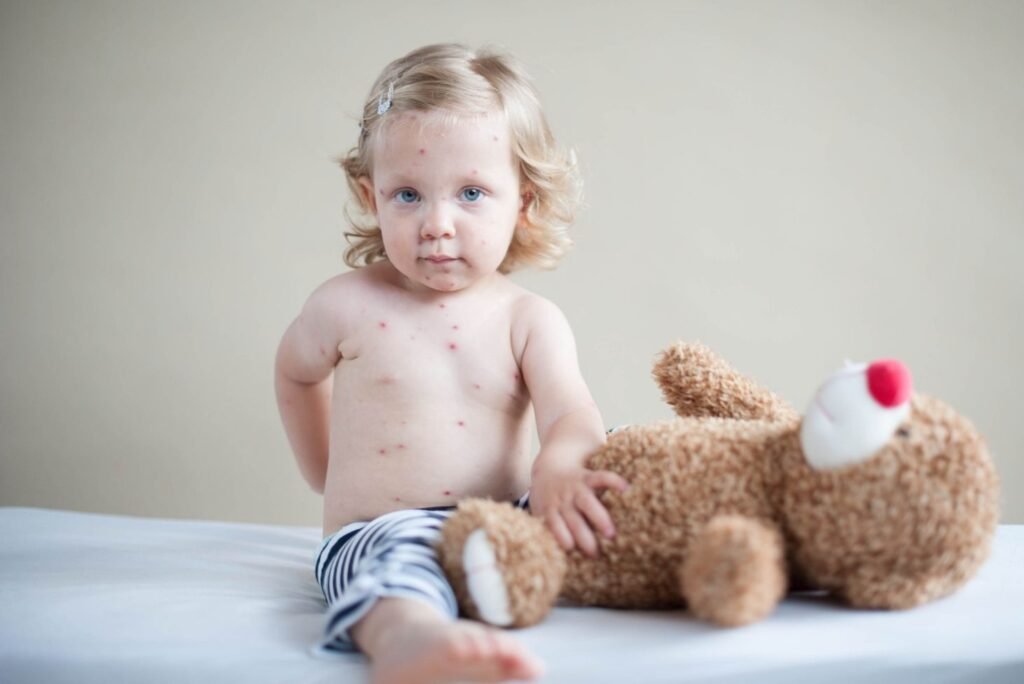 3 Natural Remedies for Measles – Chickenpox