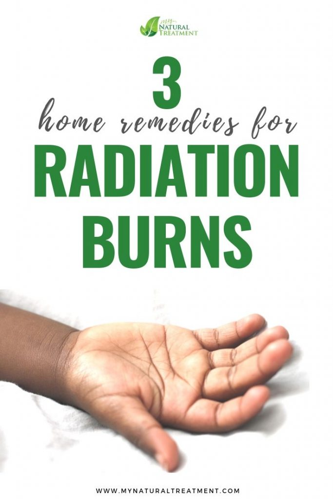 3 Home Remedies for Radiation Burn