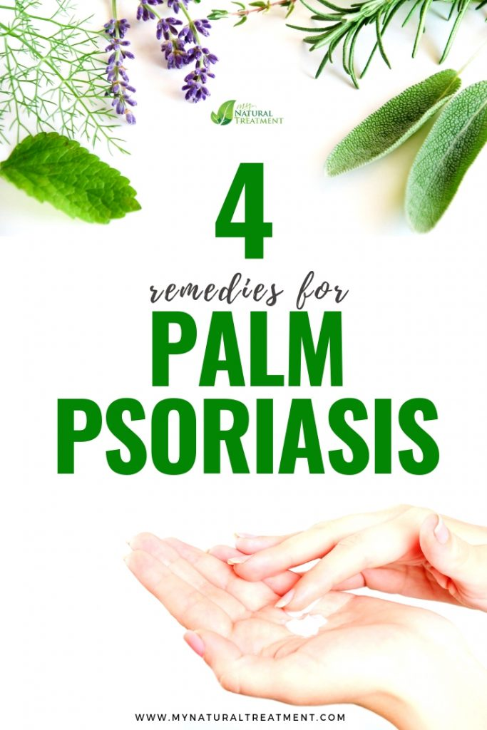 Remedies for Palm Psoriasis