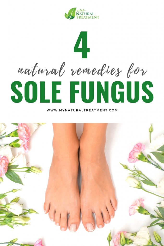 natural remedies for sole fungus