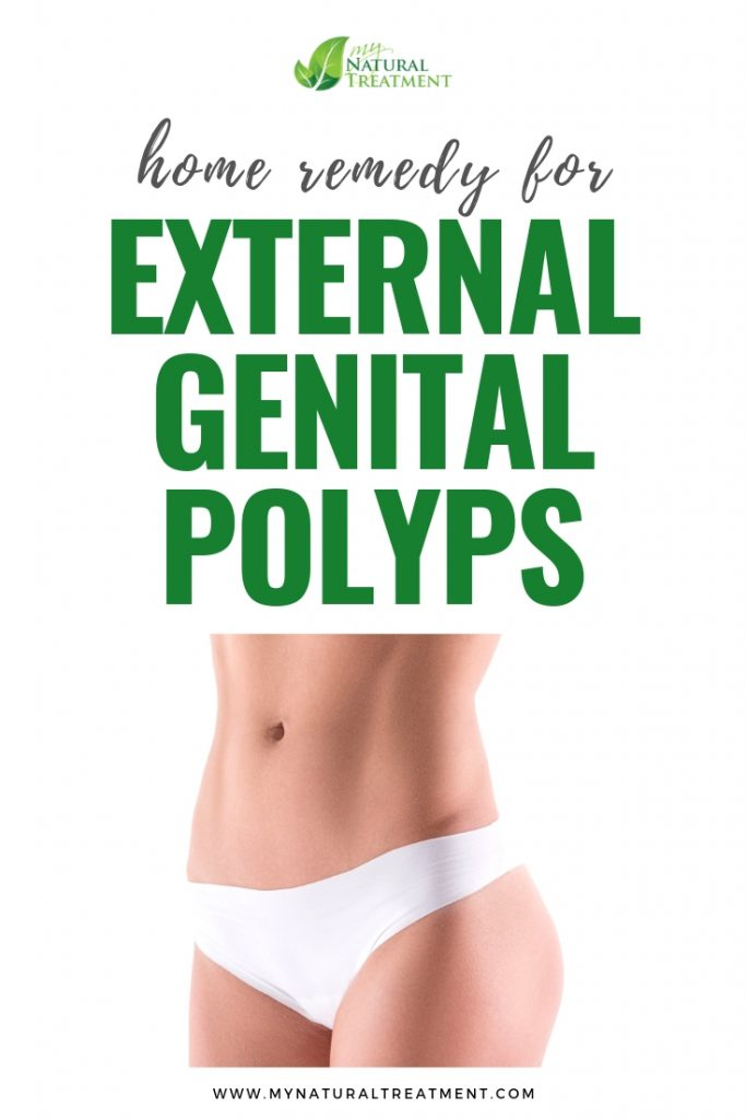 Home Remedy for External Genital Polyps#genitalpolyps