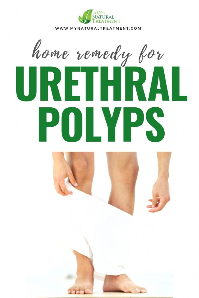 Home Remedy for Urethral Polyps