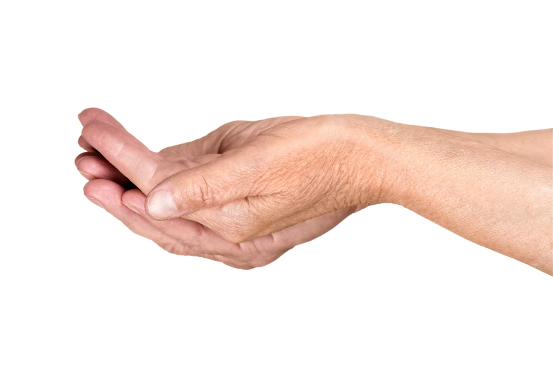 Rheumatoid Arthritis Remedies