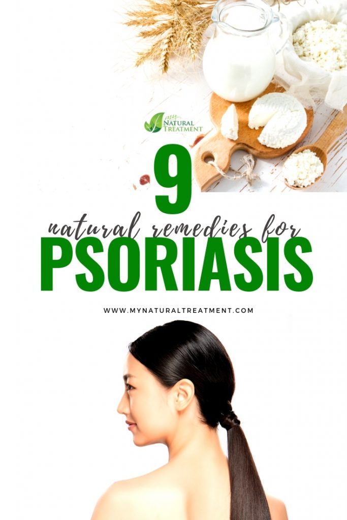 Best natural remedies for psoriasis