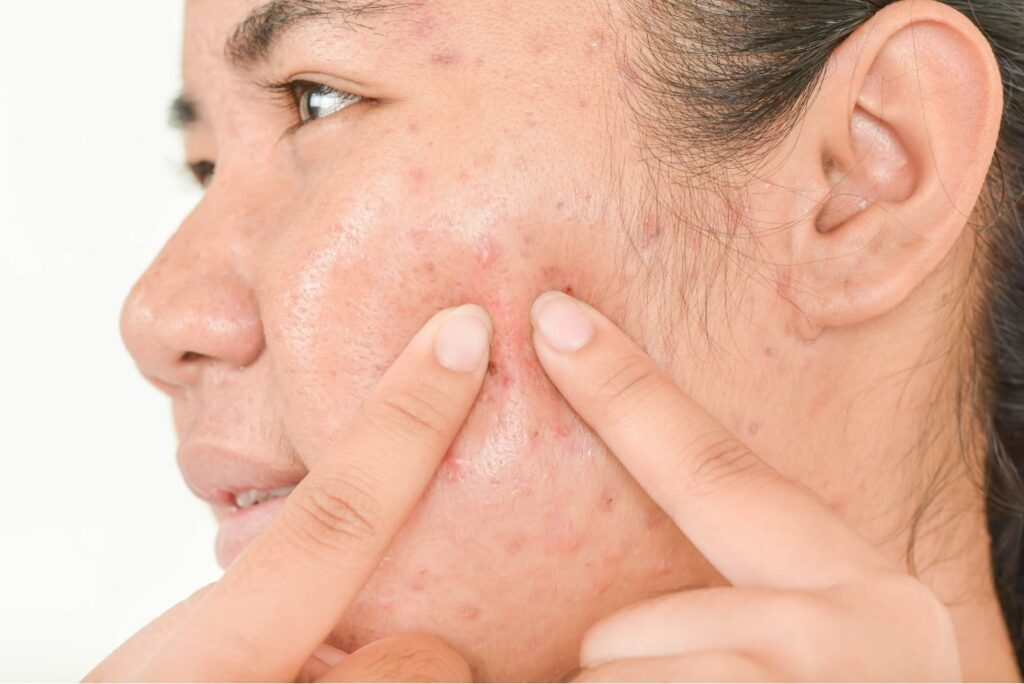 3 Natural Treatments for Cystic Acne - Acne