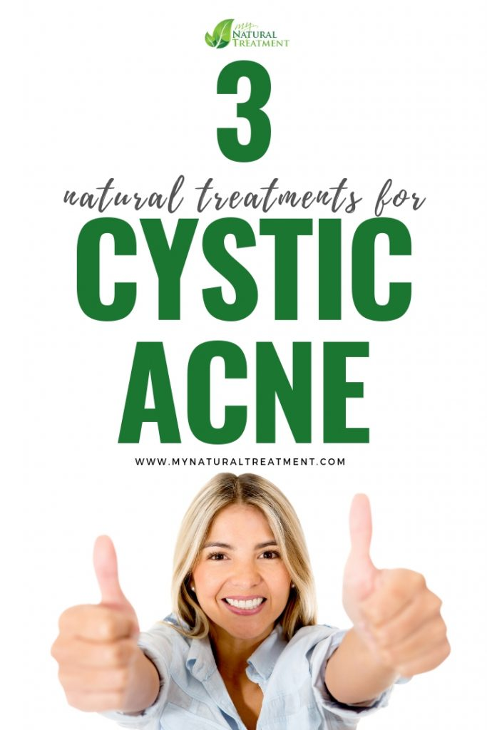 Natural Treatments for Cystic Acne