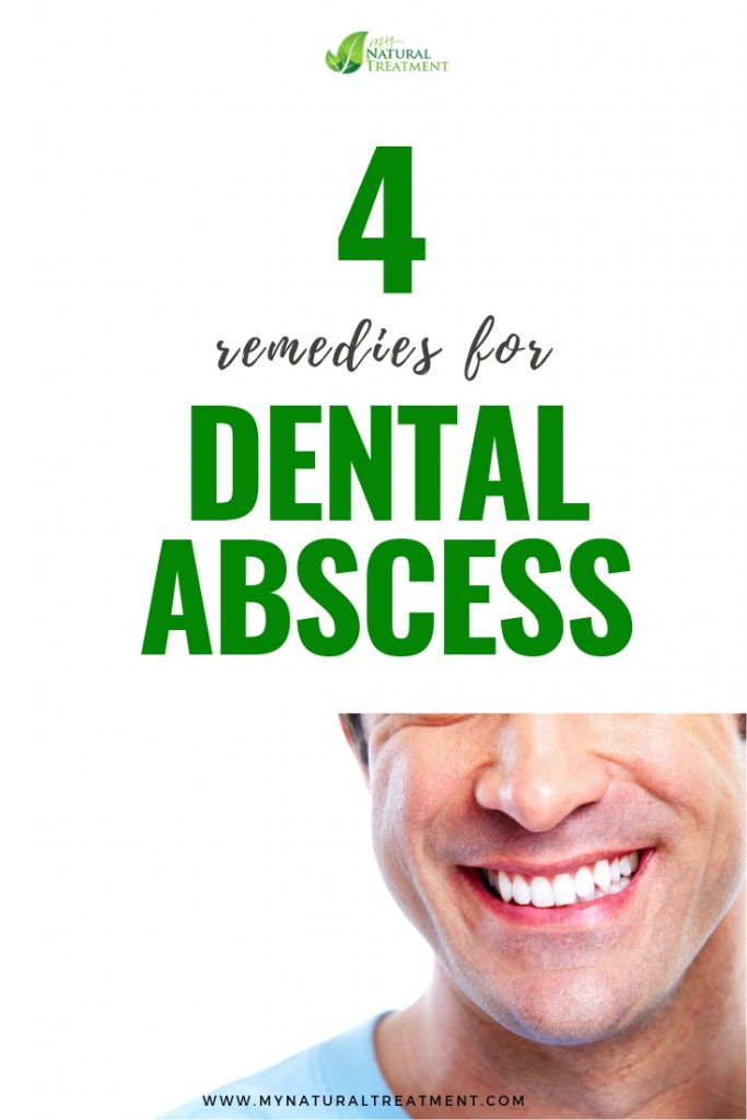 4 Natural Remedies for Dental Abscess