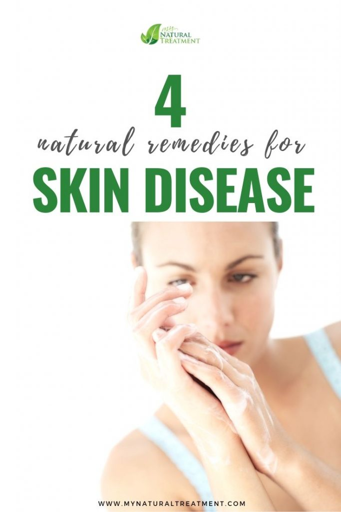 4 Natural remedies for skin disease