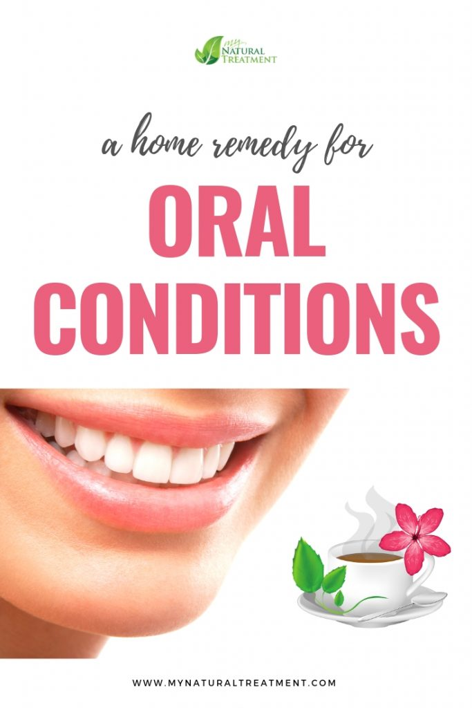 Home remedy for oral conditions
