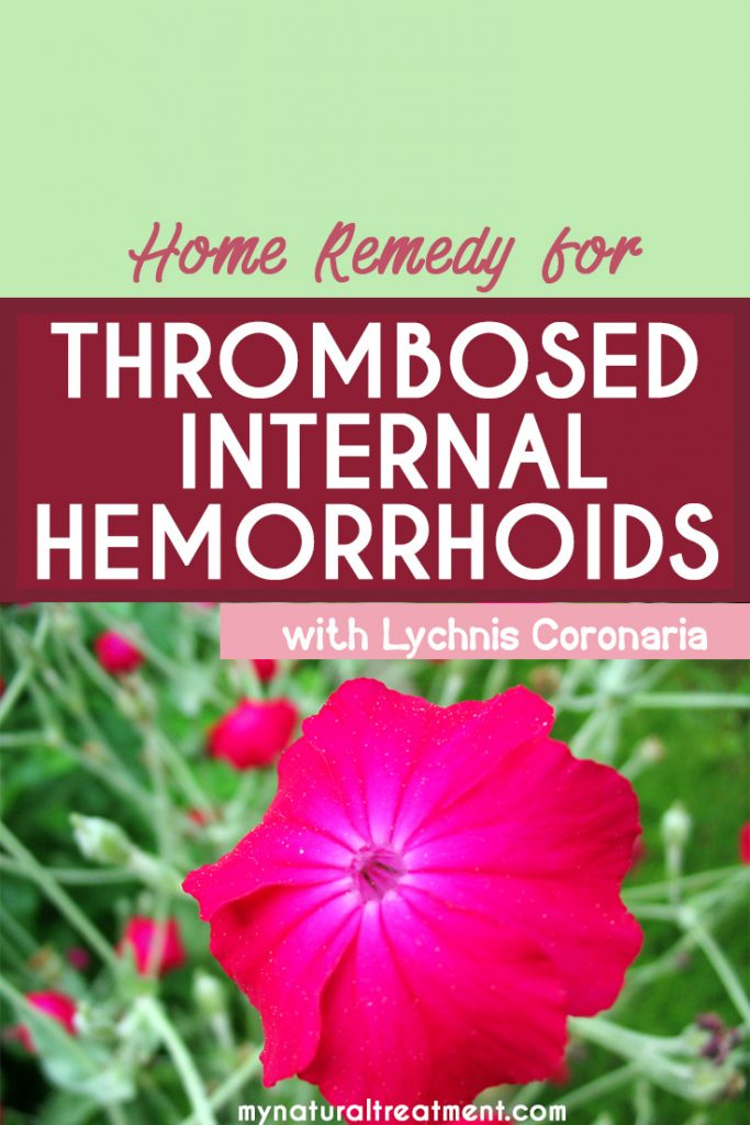 thrombosed internal hemorrhoids remedy