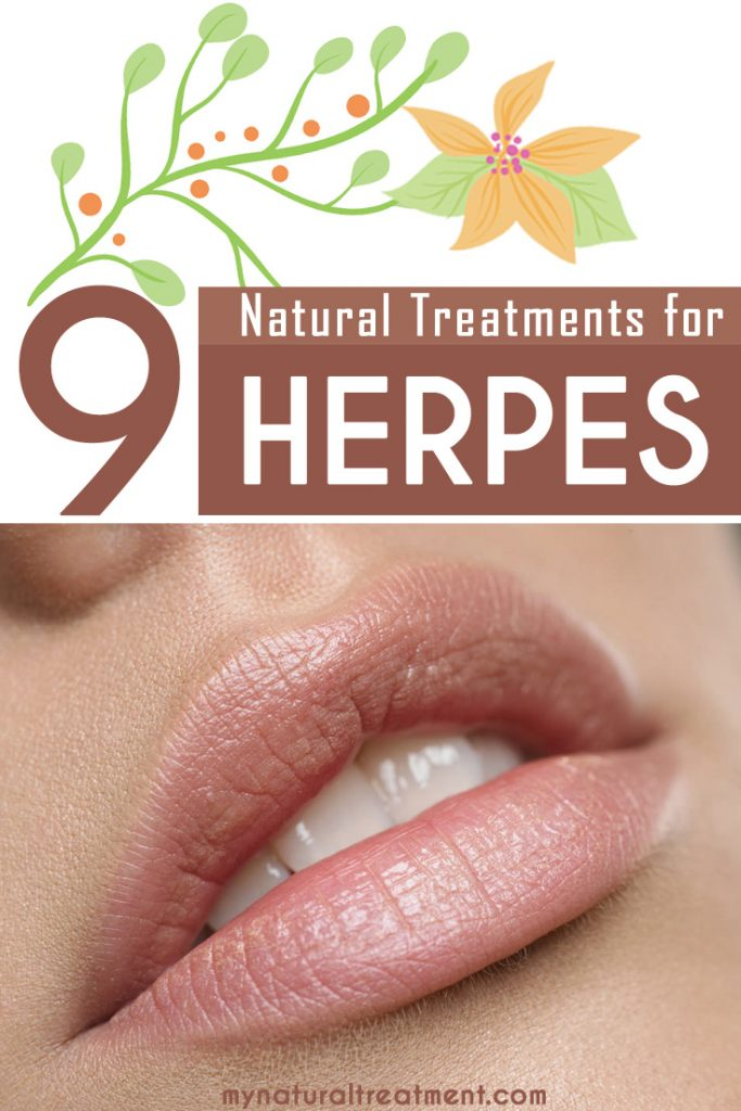 9 Amazing Natural Treatments for Herpes that you can try at home