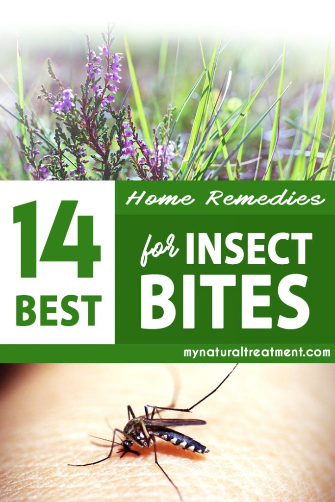 insect bites home remedies