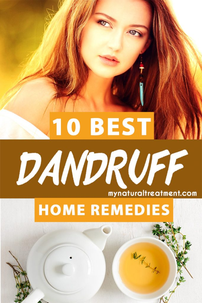 Best Dandruff home remedies