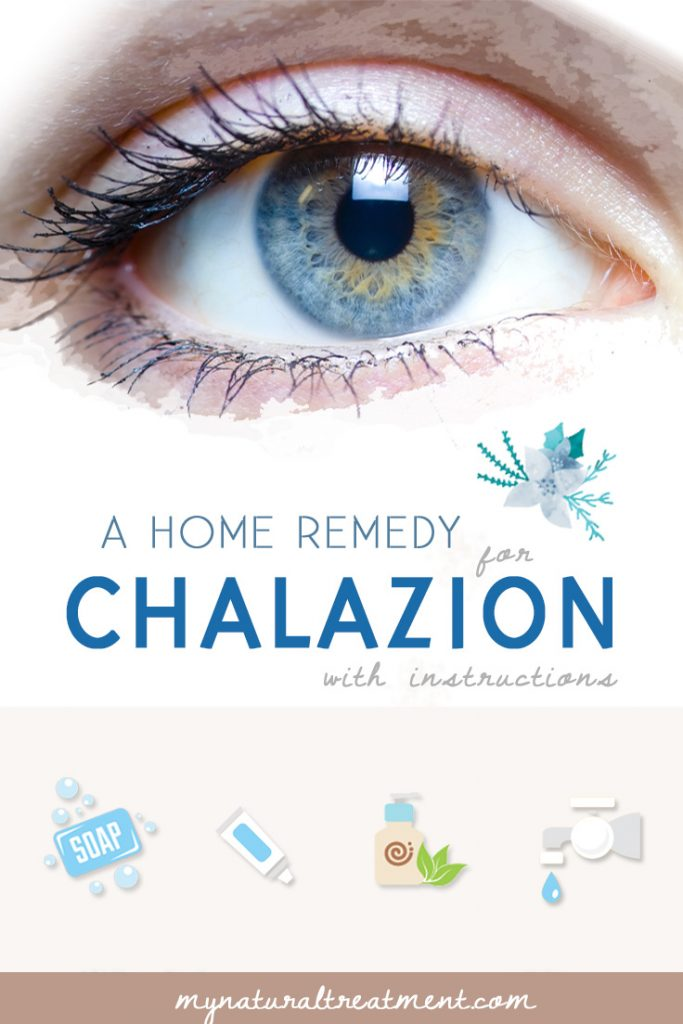 Home Remedy for Chalazion that Works #chalazion #chalazionremedy