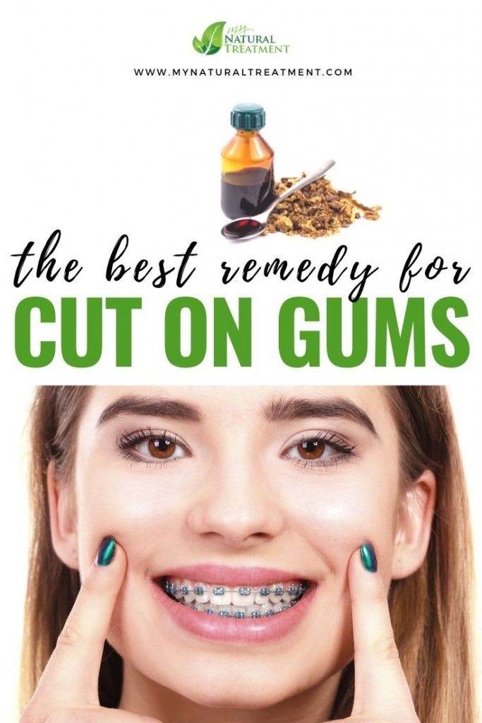Cut on Gums Home Remedy with Propolis and Marigold Tea