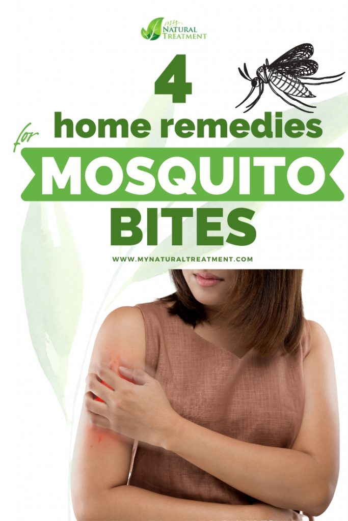 4 Home Remedies for Mosquito Bites