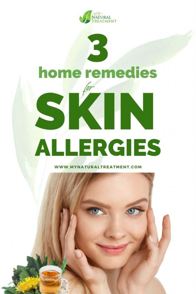 3 Powerful Home Remedies for Skin Allergies (Rashes)