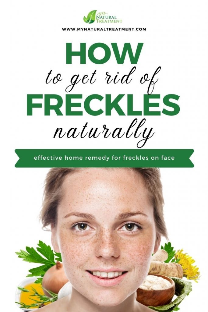 How to Get Rid of Freckles on Face Naturally - Home Remedy for Freckles