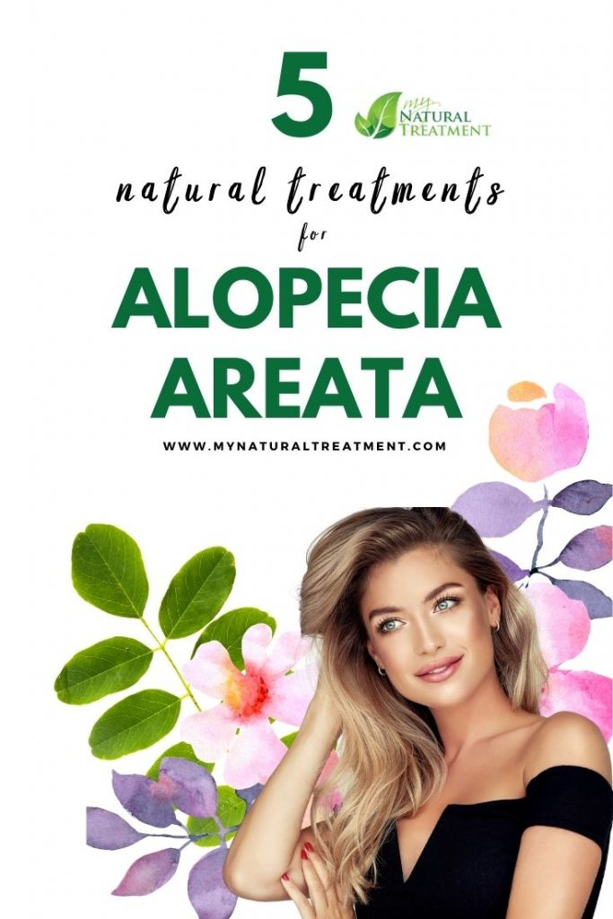 5 Natural Treatments for Alopecia Areata